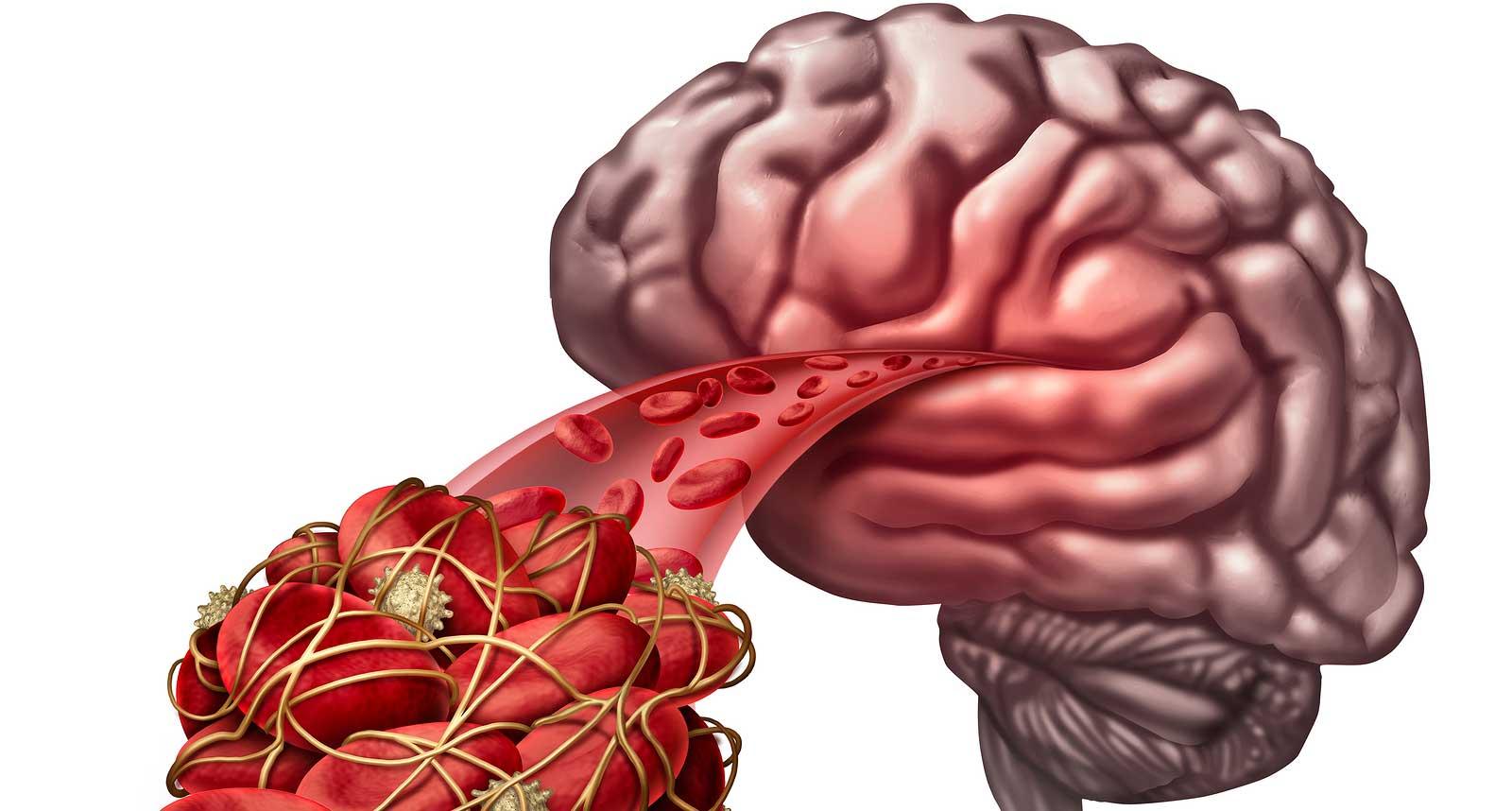 Cerebral Artery Thrombosis